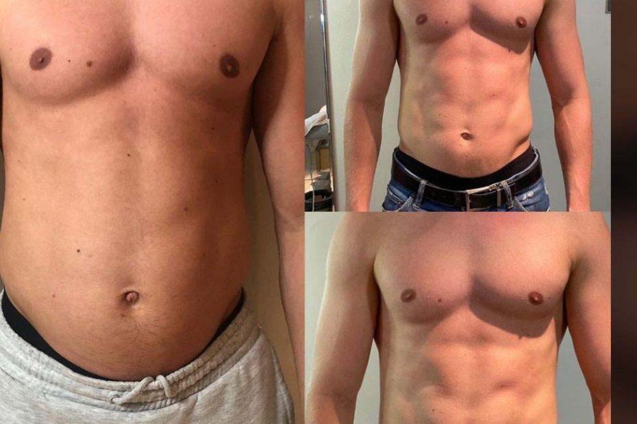 előtte-utána kép